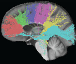 Brain imaging alone cannot diagnose autism | Special Needs News | Scoop.it