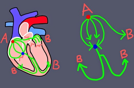 THE PAD CARDIOLOGY: Heart Block Explained | World Cardiology News - www.thepad.pm | Scoop.it