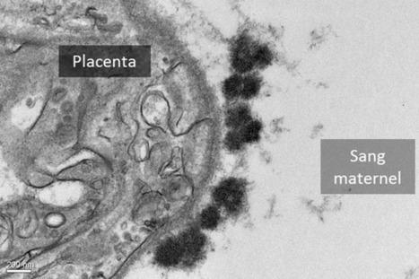 Pollution aux gaz d'échappement de moteur diesel: des effets sur les fœtus sur 2 générations - INRA | Actualités écologie | Scoop.it
