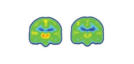Imaging study finds first evidence of neuroinflammation in brains of chronic pain patients | Social Neuroscience Advances | Scoop.it