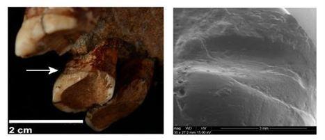 Los neandertales usaban palillos para calmar el dolor de enfermedades dentales | Oral Medicine and Pathology | Scoop.it