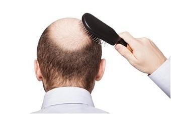 FUE vs FUT: Choosing the Best Method of Hair Transplants in Mexico | BajaHairCenter | Scoop.it