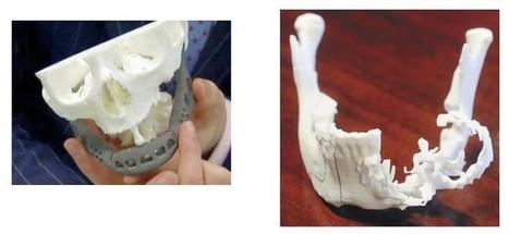Two South African Cancer Patients Receive 3D Printed Titanium Jaw Implants | 3D Technology | Scoop.it