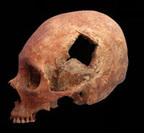 "Inca Skull Surgeons Were ""Highly Skilled,"" Study Finds 