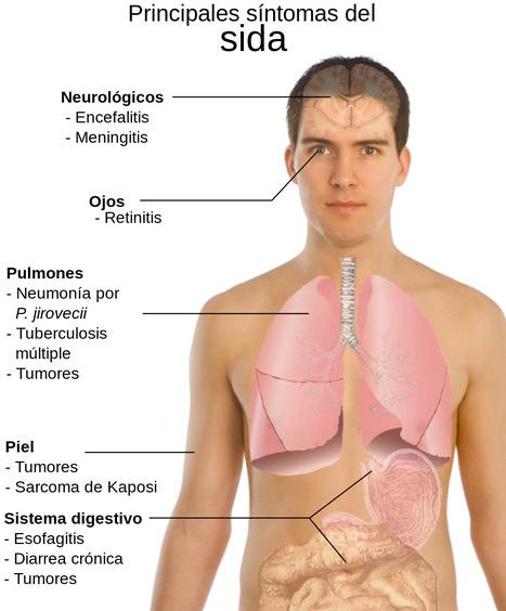 sintomas de la inmunodeficiencia adquirida. | Inmunodeficiencia secundaria | Scoop.it