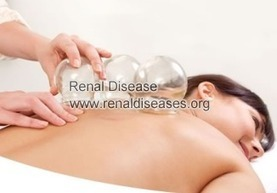 Is Cupping Safe for People with Diabetes | renaldiseases | Scoop.it