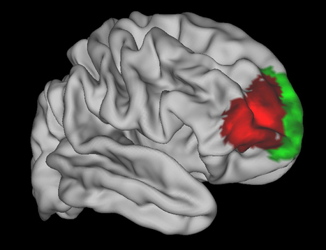 A brain area unique to humans is linked to strategic planning/decision making/multitasking | KurzweilAI | Neuroscience | Scoop.it
