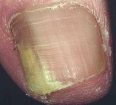 Si es posible sanar el hongo sobre las uñas de los pies por el vinagre