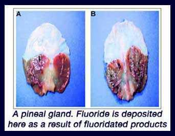 Pineal Gland and Flouride: The Biggest Cover-Up in Human History | Fluoride and pineal gland | Scoop.it