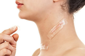 How to reduce Hypertrophic scars | health and beauty | Scoop.it