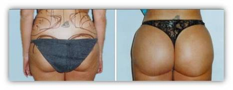New Year Great Saving Deals: Butt Augmentation/Brazilian Butt lift Thailand/Liposuction Fat transfer Thailand buttock augmentation bangkok thailand | Laser Facelift Skin tightening Bangkok, Ulthera, Coolsculpting by Zeltig, Thread lift, Thermage, Mini facelift Phuket Thailand | Scoop.it