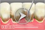 Dental Hygiene and Periodontal Health - Dentist Lafayette LA | Invisalign Lafayette LA -  Dentist Lafayette LA | Scoop.it