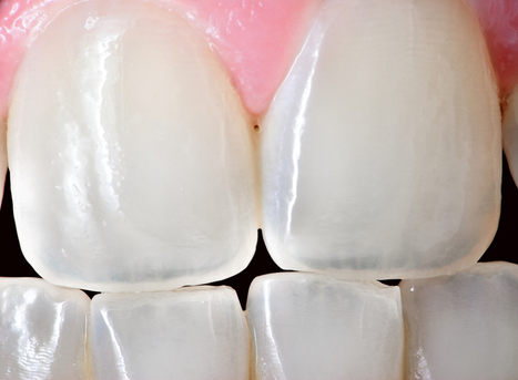 Low power laser treatment could help grow your teeth back - light stimulates dentin to form | Eugenics | Scoop.it