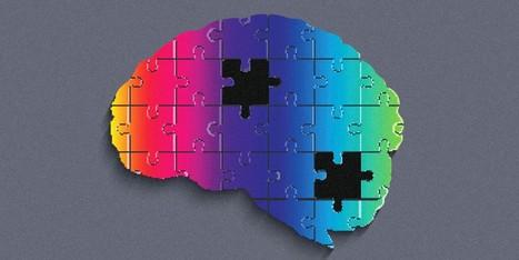 PsicoCuriosità: con quanto cervello in meno possiamo vivere?   Parliamo di psicologia   Scoop.it