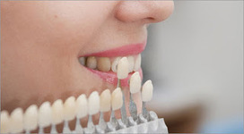 The Oral Health with Dental Veneers Camberwell | Pro Smiles | Scoop.it