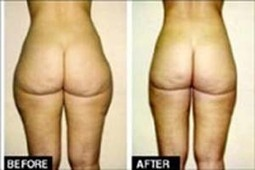 Liposuction Surgery  Fat Removal Cosmetic Surgery | Best Cosmetic Surgeons in delhi | Scoop.it