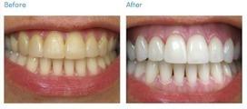 Teeth Healthy: Apply bleach teeth to whitened   record   Scoop.it