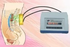 Renal-disease: Micro-Chinese Medicine Osmotherapy in Shijiazhuang Kidney Disease Hospital   How Does Cysts Rupture Occur in PKD   Scoop.it