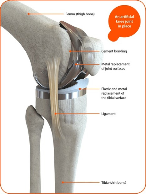 Total knee replacement | Ashutosh Hospital | Unilateral and Bilateral Total Knee Replacement Surgery | Scoop.it