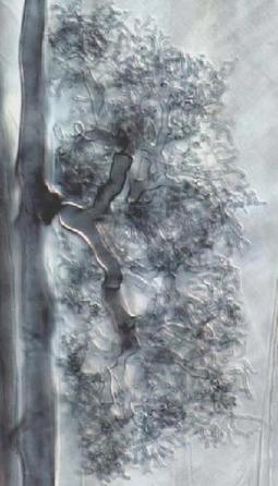 Rhizophagus irregularis DAOM 181602 v1.0 - Home | Mycorrhizal fungal genomes | Scoop.it