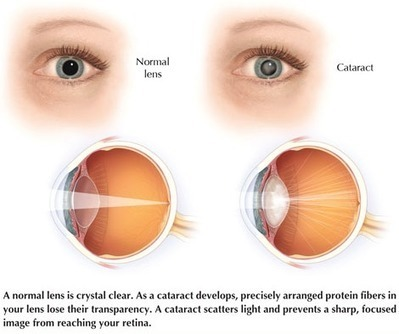 Best Eye and Vision Centre at India: PREMIUM LENSES USED IN CATARACT SURGERY | Best Eye Hospital in Mumbai | Scoop.it