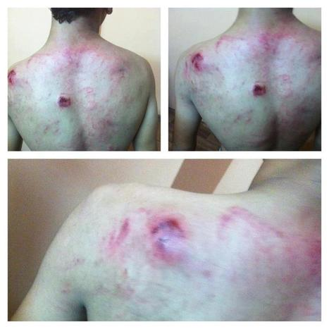 Darklib, Bahrain:  Torture by the Mercenaries of an unarmed youth! | Human Rights and the Will to be free | Scoop.it