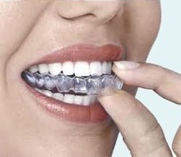 Invisalign San Marcos - Best Orthodontist CA Dr. Akash Lapsi | Emergency Dentist San Marcos | Scoop.it