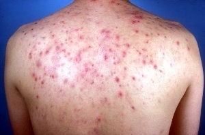 Treatment for Cystic Acne on Back   Online Help   Scoop.it