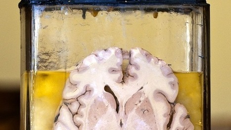 Indiana man accused of stealing brains from a museum and selling them on eBay | The Raw Story | Digital Museums | Scoop.it