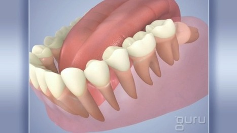 Normal Wisdom Tooth | Pediatric Dentist | Scoop.it
