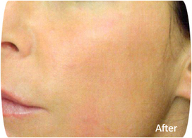 Louisville Face Lift | Non-Surgical Neck Lift treatment cost | Benefits Of Physician Assisted Weight Loss | Scoop.it
