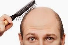 Best company of Hair Transplant in Vadodara | Hair Transplant Center in Vadodara | Scoop.it