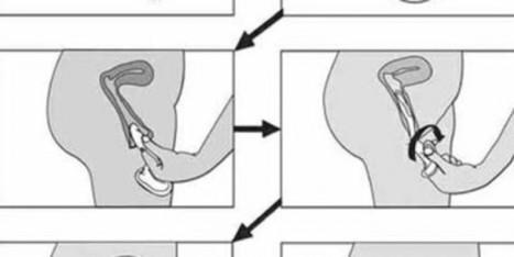Tổng hợp các biện pháp tránh thai (P1) | Game Mobile | Scoop.it