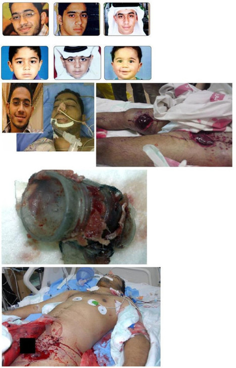 The martyrdom of Ali Almoamen.........crime against humanity! | Human Rights and the Will to be free | Scoop.it