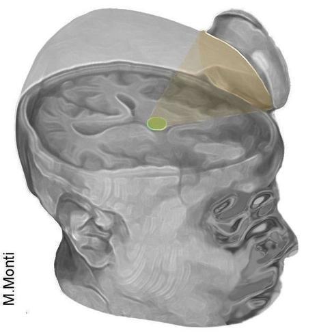 Ultrasound jump-starts brain of man in coma | KurzweilAI | Longevity science | Scoop.it