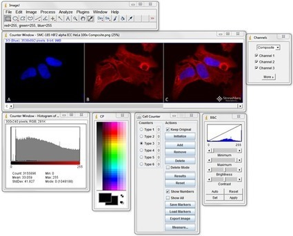 5 Free Image Analysis Software Tools for Microscopy - StressMarq | Teaching and Learning software and topics | Scoop.it