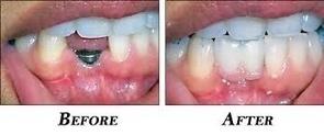 Dentist in West Hills CA | Winnetka Dental | Scoop.it