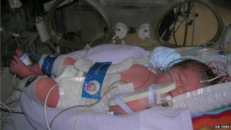 Cooling babies 'halts brain damage' | Cerebral Palsy News | Scoop.it