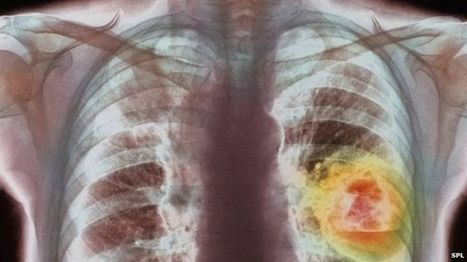 Lung cancer therapy is 'milestone' - BBC News | The future of medicine and health | Scoop.it