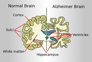 What Causes Memory Loss | Alzheimer's | Scoop.it