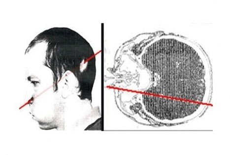 The Man Who Survived A Proton Beam To The Brain   Nuclear Physics   Scoop.it