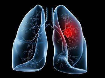 Lung Lobectomy in Coimbatore | Thoracoscopic Surgery in Tamil Nadu | Heart Disease Treatment | Scoop.it