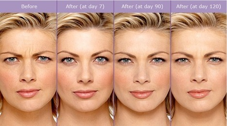 Botox: Treatment For a Face Devoid of Wrinkles | cosmetic surgery | Scoop.it
