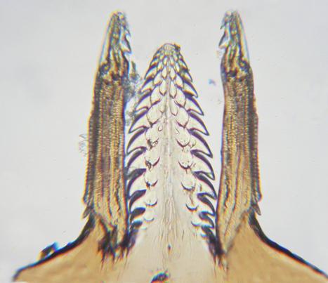 Recommandations en cas de morsure de tique | Fédération Française contre les Maladies Vectorielles à Tiques           | EntomoScience | Scoop.it