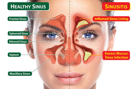 Sanvic: Health, Comfort, & Pleasure   nasal-care   Scoop.it