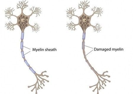 Nanoparticle shows promise in treatment of multiple sclerosis | Longevity science | Scoop.it