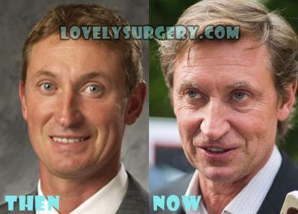 Wayne Gretzky Plastic Surgery Botox, Facelift Before After | Celebrity Plastic Surgery | Scoop.it