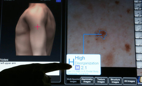 Controversy over FDA-Approved Device to Detect Melanomas | Melanoma Dispatch | Scoop.it