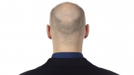 Stem cell-based treatment for baldness a step closer | Longevity science | Scoop.it