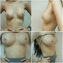 Breast Augmentation Photos-Asia Clinic Thailand | Best Cosmetic Surgery In Thailand | Scoop.it